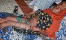 A Female Genital Mutilation victim