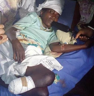 A woman with part of her leg amputated as a result of bullet wound