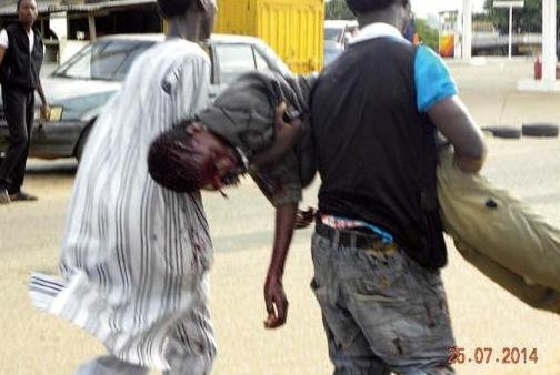 An injured man being helped by volunteers