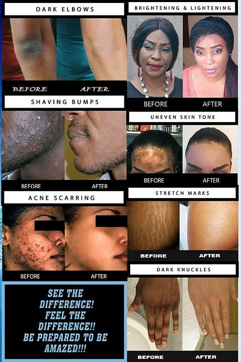 Before and After pictures using Body Contours products