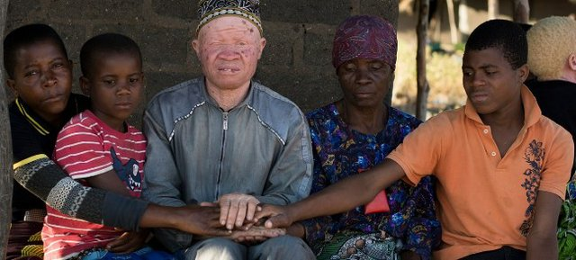 Albinism in Malawi must stop